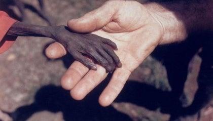 Pieni nääntynyt käsi terveellä kädellä