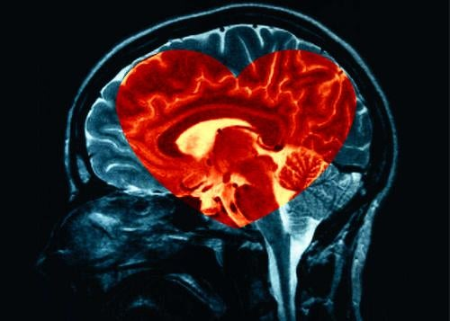 Intuitio sydän aivoissa