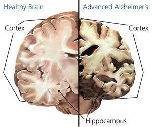 Alzheimer's and Normal Brain