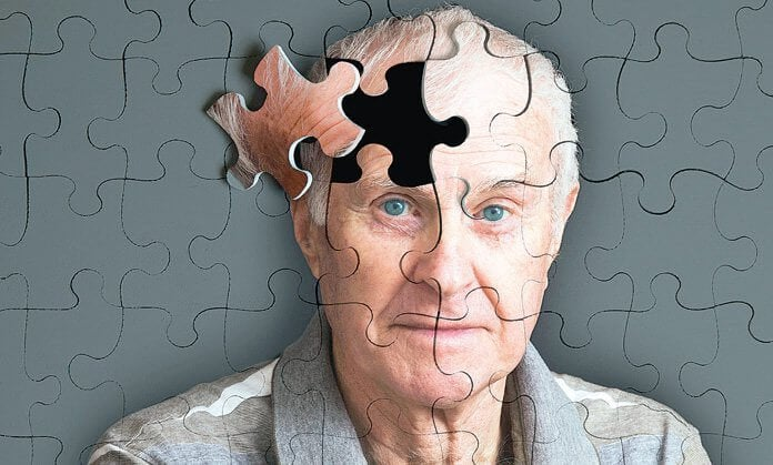 "5 Warning Signs of Alzheimer""s"