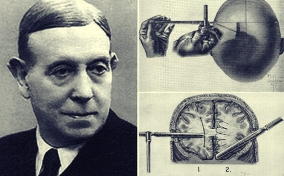 Egas Moniz and the Amazing History of the Lobotomy