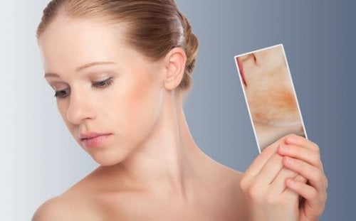 woman with picture of dermatitis