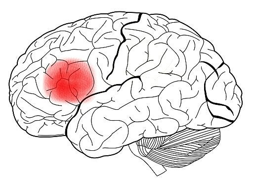 brain with the broca area highlighted in red