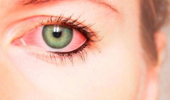 Bloodshot eyes.