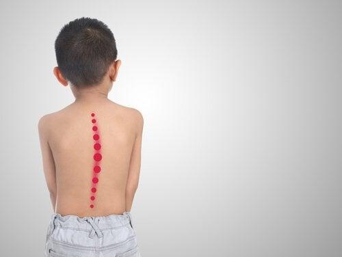 skolios uppstår hos barn