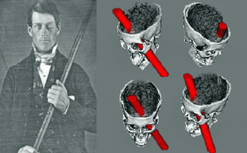 Phineas Gage and a representation of his brain injury.