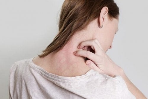Woman with a rash.
