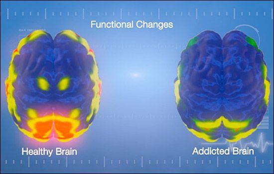 An addict's brain.