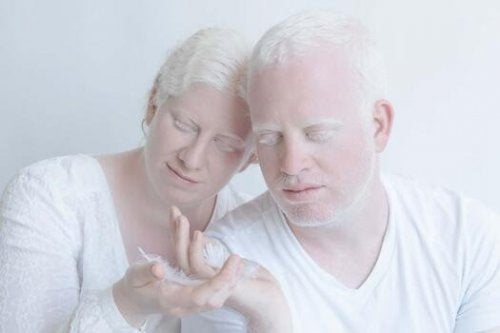 Couple living with albinism.