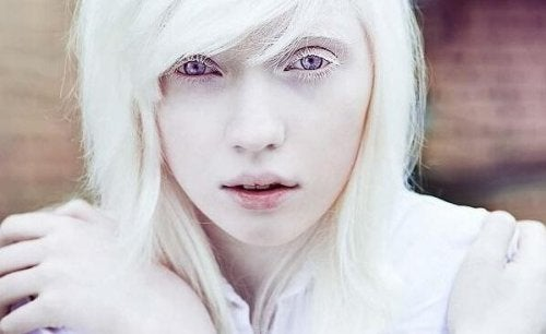 Living with Albinism: Beyond Physical Appearance