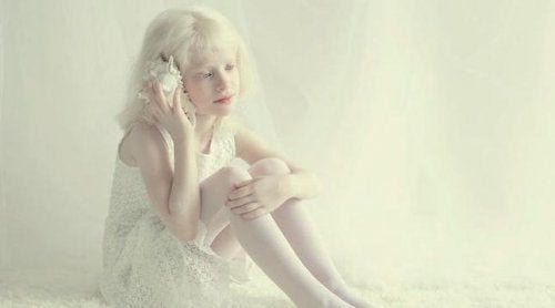 Little girl with albinism.