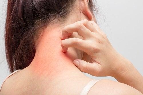 Atopic dermatitis often manifests itself on joints.