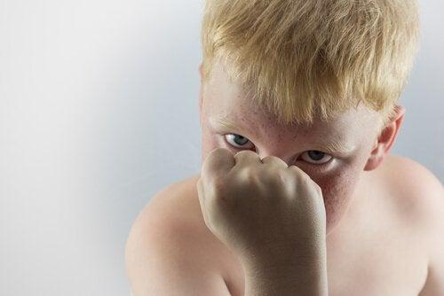 Aggressive child.