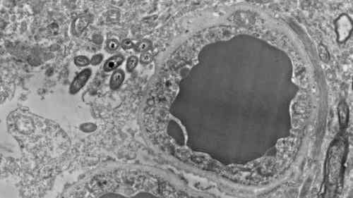 Brain Microbiome: Gut Bacteria in the Human Brain
