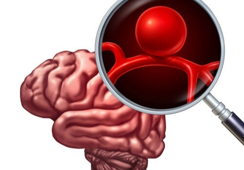 Nærbillede af interkranielt aneurisme