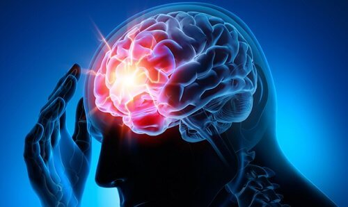 Man with a headache due to intracranial aneurysm.