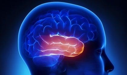 Temporal lobe.