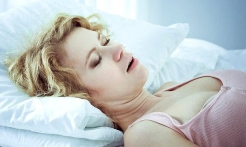 A woman with hypersomnia sleeping.