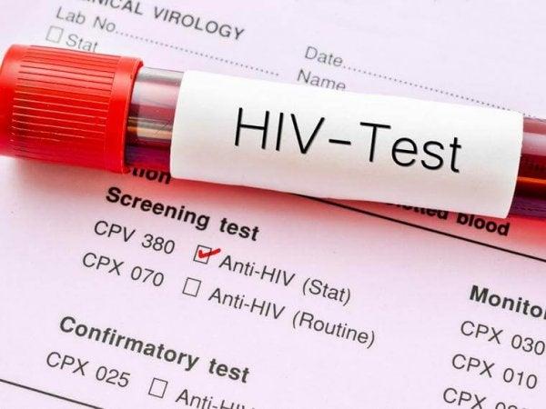 An HIV test.