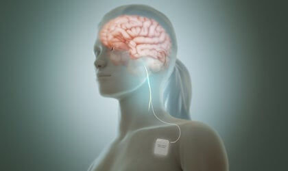 Vagus Nerve Stimulation Reduces Depression Symptoms