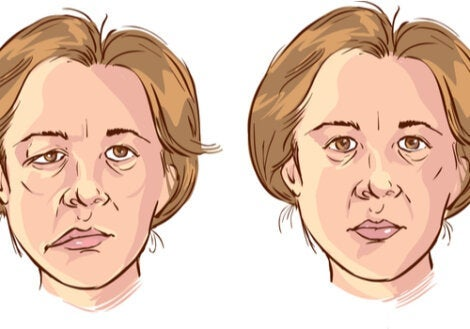 An illustration of a woman with facial paralysis.