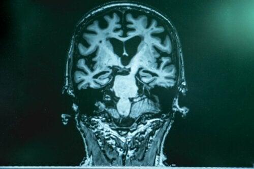 A brain with Alzheimer's.