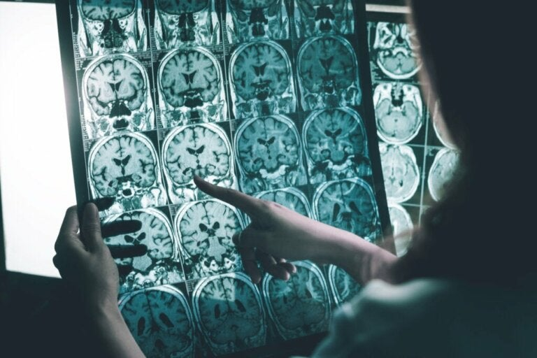 Brain Wave Stimulation for People with Alzheimer's
