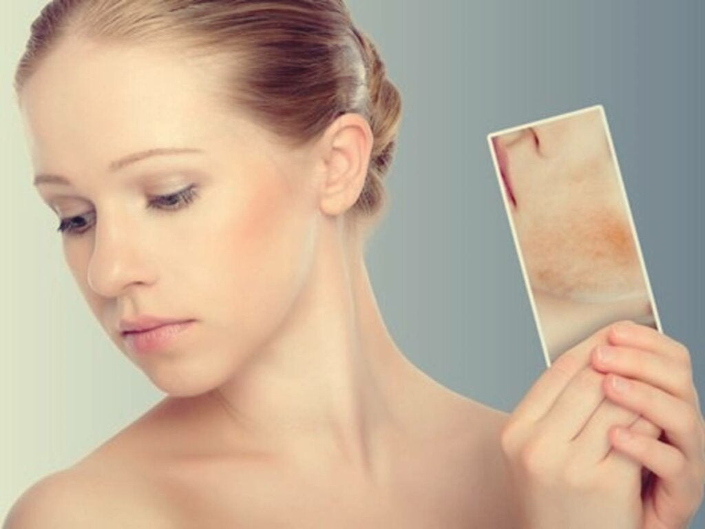 Stress Rashes and Spots: When Your Skin Reacts to Your Emotions