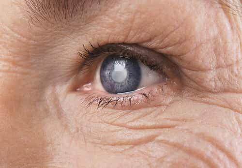 Cataract Surgery - How Does the Brain Process Visual Changes?