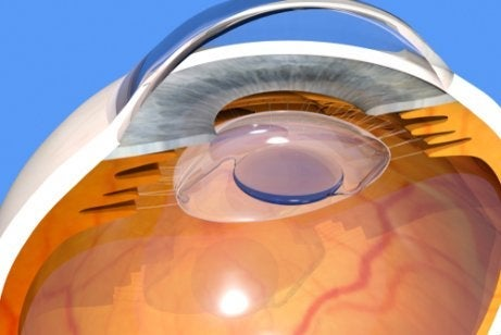 An intraocular lens on an eye.