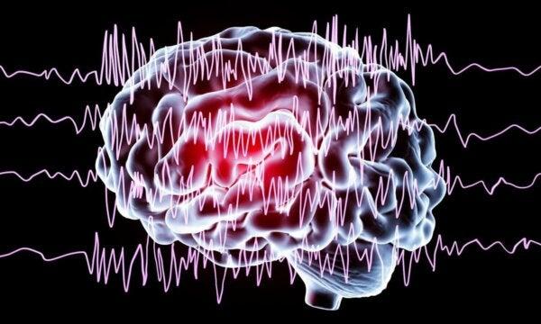 Waves on a brain.