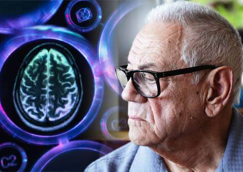 A person with vascular dementia.