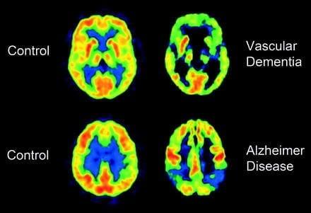 Vascular dementia.