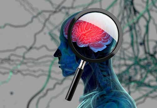 A brain under scrutiny.