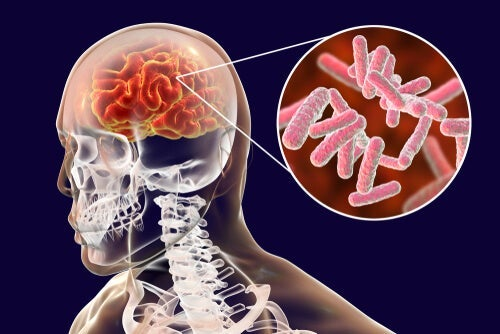 The Classification of Brain Infections and Their Symptoms