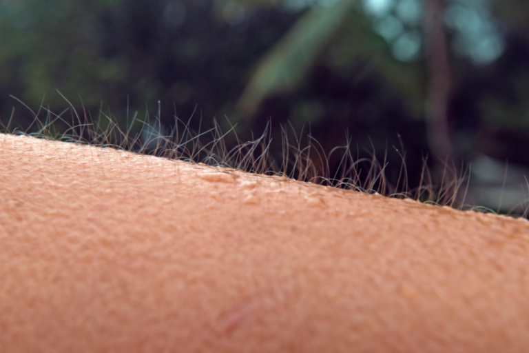 Skin Orgasms, When Music Gives You Goosebumps